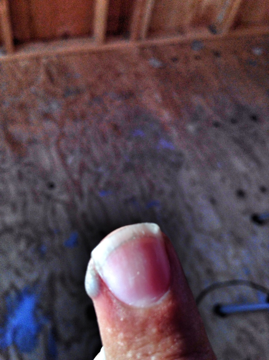 what happens when a hammer meats your finger!!!